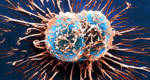 Näin immuunijärjestelmä taistelee syöpää vastaan