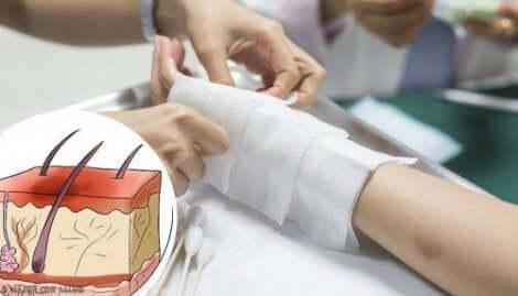 Toisen ja kolmannen asteen palovammat vaativat lääkärinhoitoa