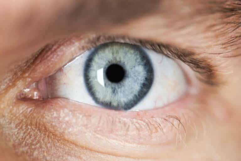 Mioosi eli pupillin supistustila - syyt ja tuntomerkit