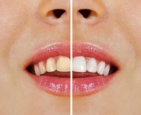 Luonnollisia tuotteita hampaiden valkaisuun