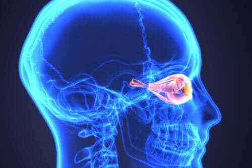 Neuromyelitis optica tai Devicin tauti: mikä se on?