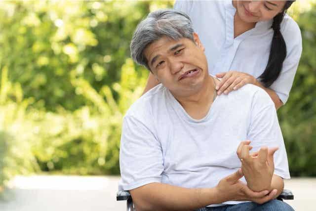 Aivoverenvuoto on yksi tärkeimmistä aivohalvauksen aiheuttajista.