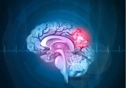 Aivojen ja mielen välillä on eronsa.