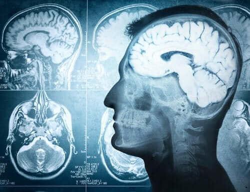 Aivojen rakenne ja erilaiset toiminnot