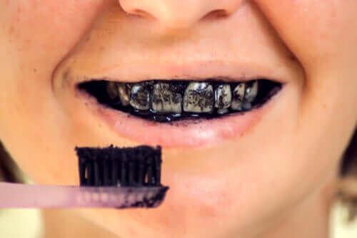 Aktiivihiilen riskit suun terveydelle