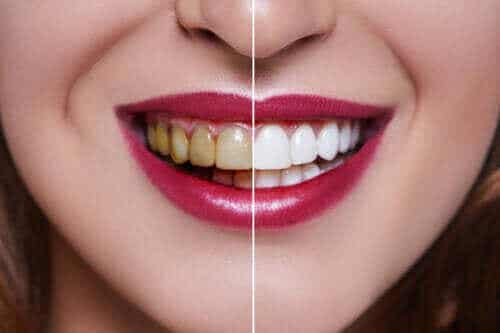 Mistä hampaiden värjäytyminen johtuu?