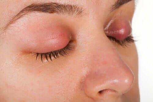 Silmäluomien tulehdus: oireet ja hoito