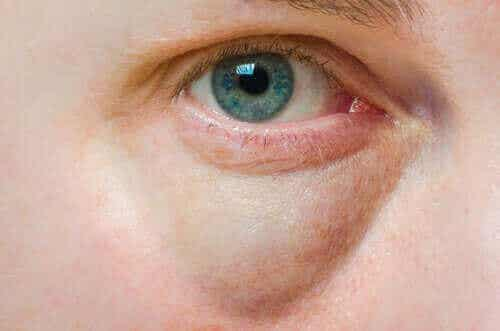 Turvonneet silmäluomet: syyt ja hoito