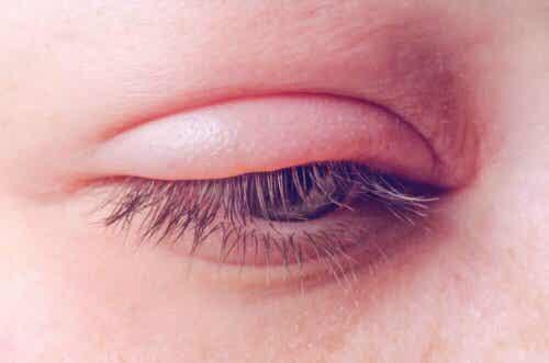 Silmäluomien tulehdus turvottaa luomen.