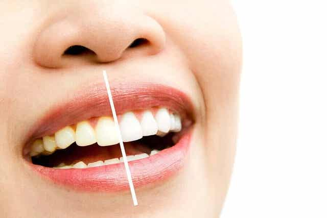 Hampaiden värjäytyminen johtuu useista eri tekijöistä