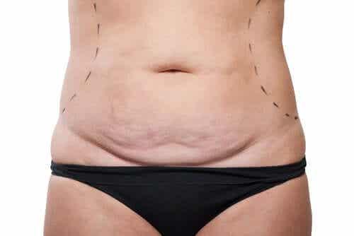 Abdominoplastia on vatsan ihon poisto.