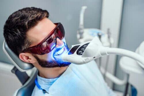 Kuinka kauan hampaiden valkaisun tulokset kestävät?