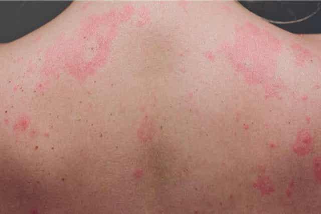 Tähkäkimikki voi aiheuttaa ihottumaa