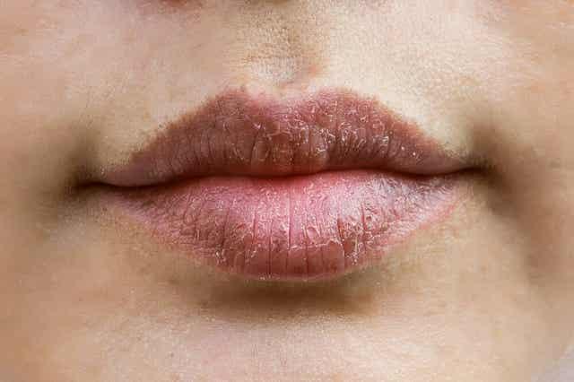Lanoliinivaha sopii kuiville huulille.