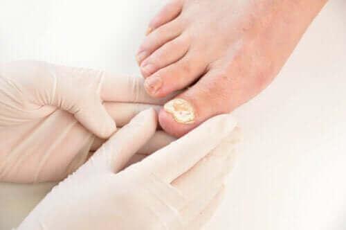 7 tapaa ehkäistä kynnen sieni-infektioita
