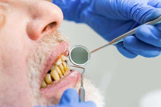 Tupakoitsijan melanoosi on vaiva, joka ilmenee tummina läiskinä suussa sekä mahdollisesti keltaisina hampaina.