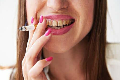Millainen sairaus tupakoitsijan melanoosi on?