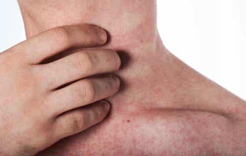 Lateksiallergia ilmenee ihottumana.