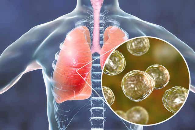 maailman tuberkuloosipäivä ja tietoisuuden levittämisen tärkeys.