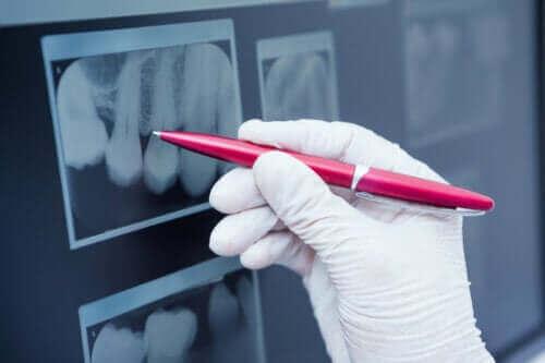 Mikä on hampaiden kiillehypoplasia?