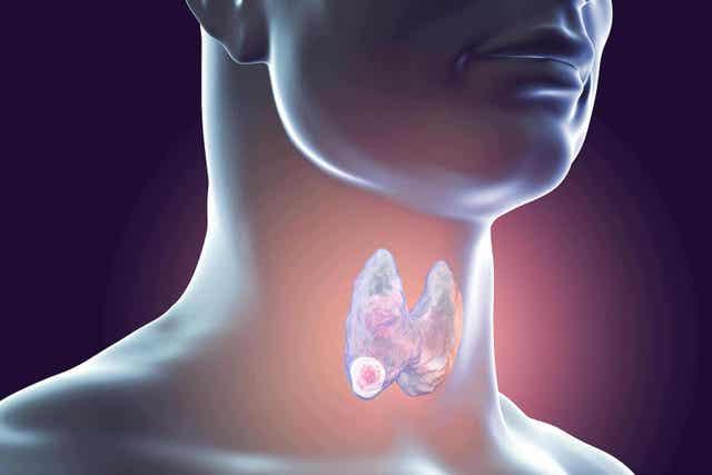 On tärkeää tietää kilpirauhasbiopsiasta se, että sen avulla voidaan diagnosoida erilaisia sairauksia.