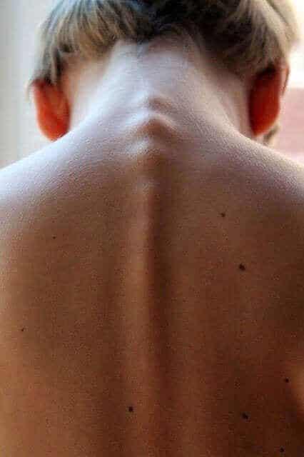 Poikittainen myeliitti: oireet, syyt ja hoidot