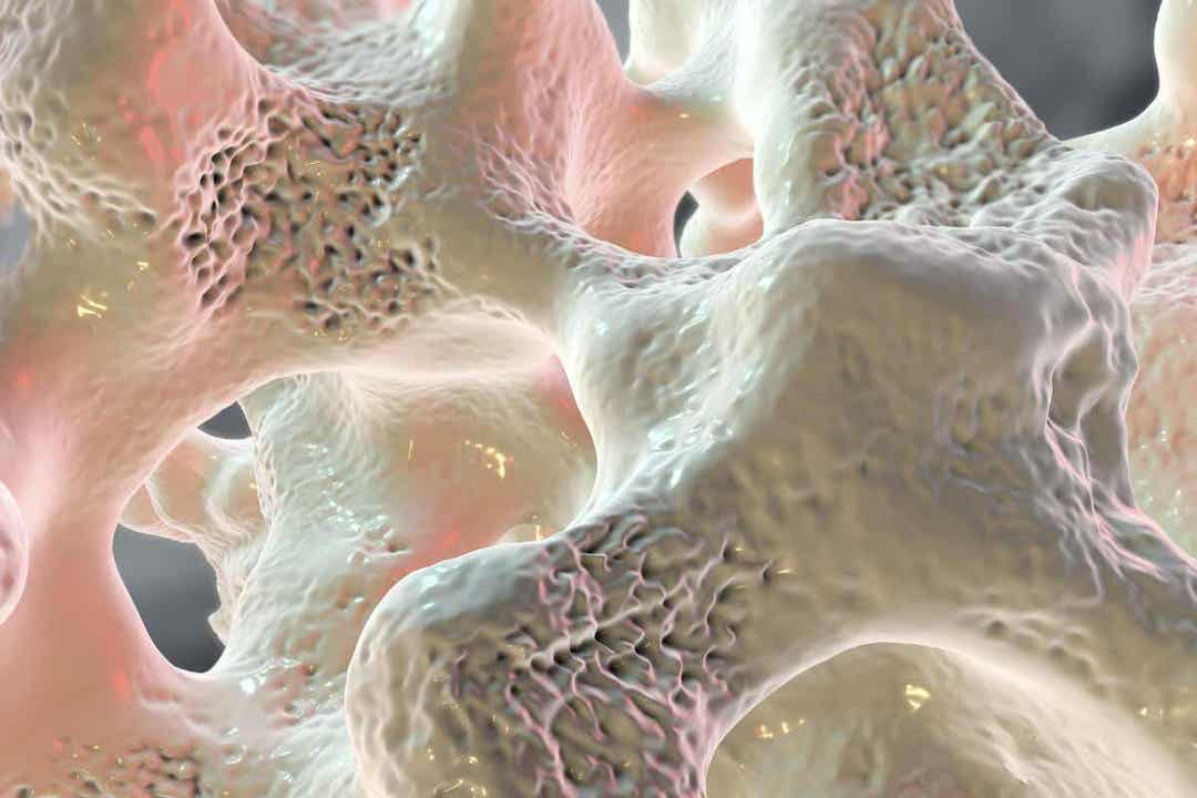 Lantion murtumat voivat johtua osteoporoosista