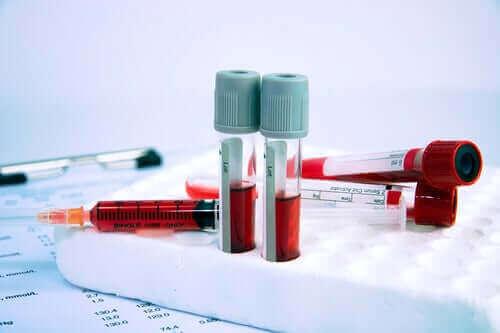 Hematologiset sairaudet