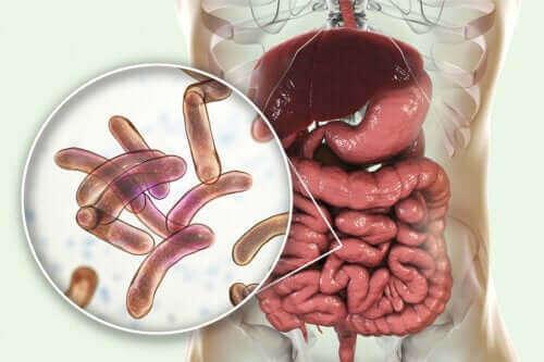 Bakteerien liikakasvun hoito