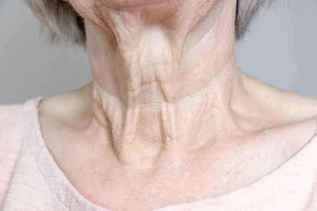 Jet peel -kasvohoito torjuu ihon ikääntymistä