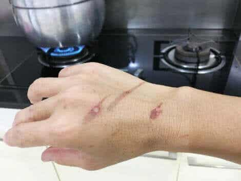 Kuuman vesihöyryn ja veden aiheuttamat palovammat sekä keittiö